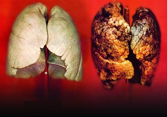 легкие курящего и не курящего